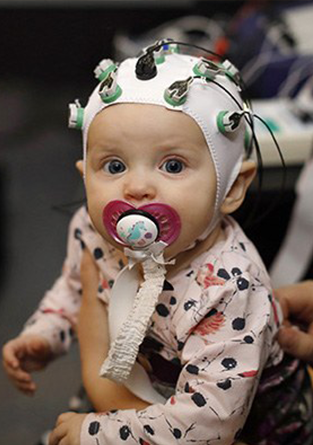 EEG scan infant brain