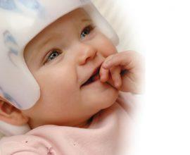 Cranial Helmets – cranial remolding headband treatments